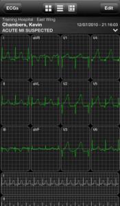 AirStrip Cardiology
