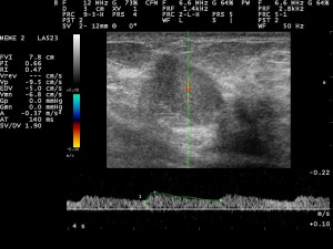 breast ultrasound