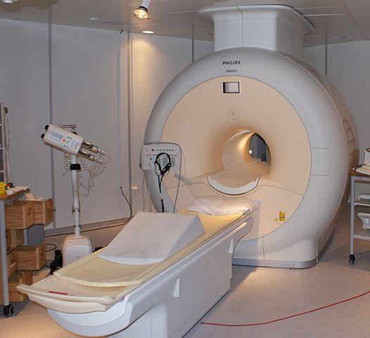 headache MRI