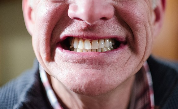 Another Challenge Of Old Age: Keeping Your Teeth • Physicians News